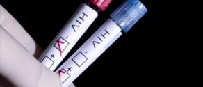 test hiv.jpg
